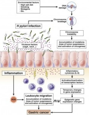 The roles of H pylori, environmental factors, and inflammation in the pathogenesis of gastric cancer. H pylori–induced inflammation leads to high turnover of gastric endothelial cells and a microenvironment that is high in reactive oxygen (ROS) and nitrogen species, increasing opportunities for DNA damage and somatic mutations.