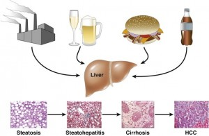 Multiple factors and metabolic pathways lead to the same histologic liver abnormalities.