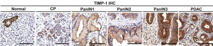 Immunohistochemical (IHC) detection of TIMP1 in human pancreatic lesions.