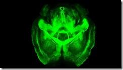 CLARITY, la técnica de 'hacer transparente' el cerebro para ver su estructura molecular