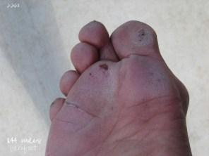 2.26.11 right foot