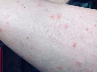 Attaques rangées par des centaines de moustiques florentins!