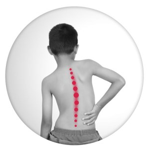 Boy with scoliosis curve.