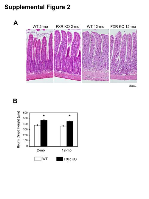 small resolution of effect of fxr deficiency on ileum histomorphology a pictures of h e staining of ileum of 2 and 12 month old male wt and fxr ko mice 20x
