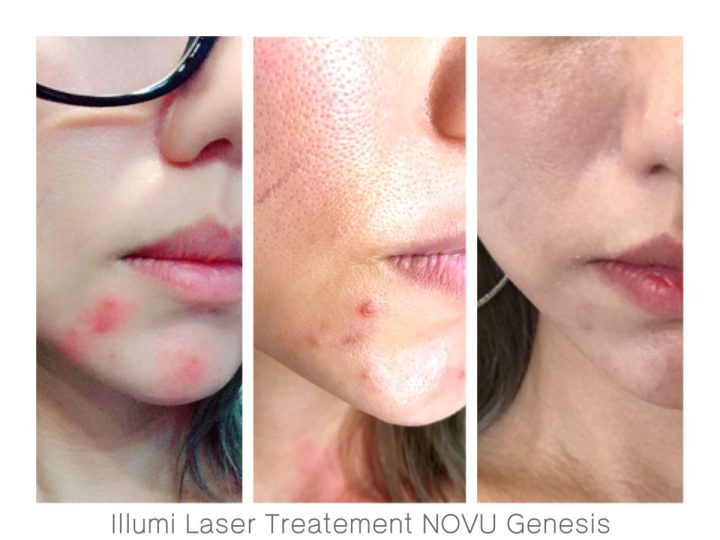 NOVU Medical Aesthetic Clinic Genesis Flagship Store Singapore- Illumi Laser Treatment -Jpglicious (7)