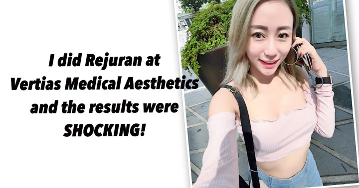 I did Rejuran at Veritas Medical Aesthetics and the results were Shocking!