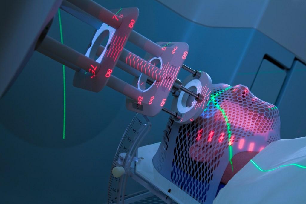 Radiation treatment performed by medical dosimetrist.