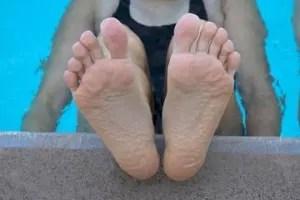 pruney-toes
