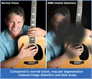 macular_degeneration_amd