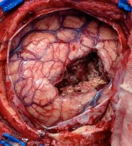 surgery_avm-2-b2432fea3187a480328e097181a89001