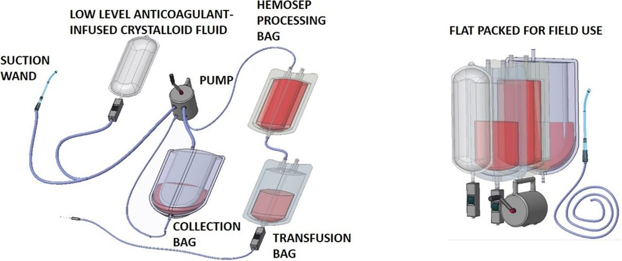 Development of a portable blood salvage and