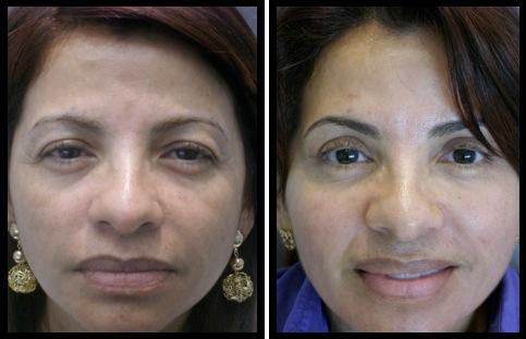 upper eyelids blepharoplasty-004
