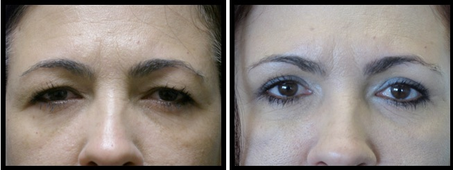 upper eyelids blepharoplasty-008