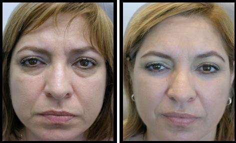 Lower Eyelids Blepharoplasty before&after photos Puerto Rico