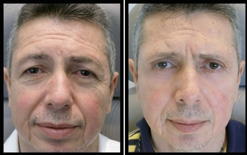 upper and lower eyelids blepharoplasty before and after male patient image