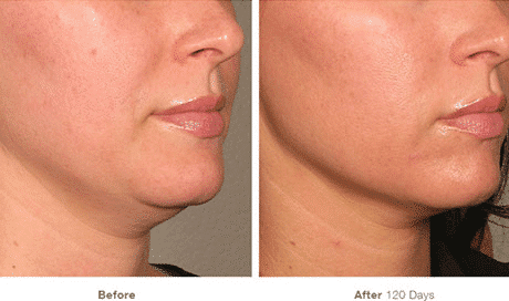 Ultherapy, Non-Invasive Lift, Face Lift, Non-surgical Lift