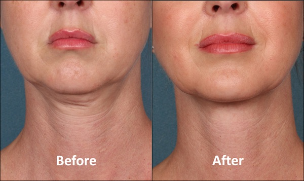 KYBELLA Patient Before and After (Front view)