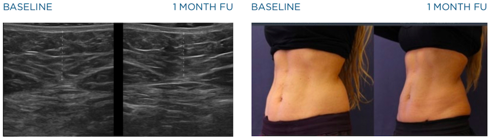 emscupt before and after images of abdomen 1 month after treatment