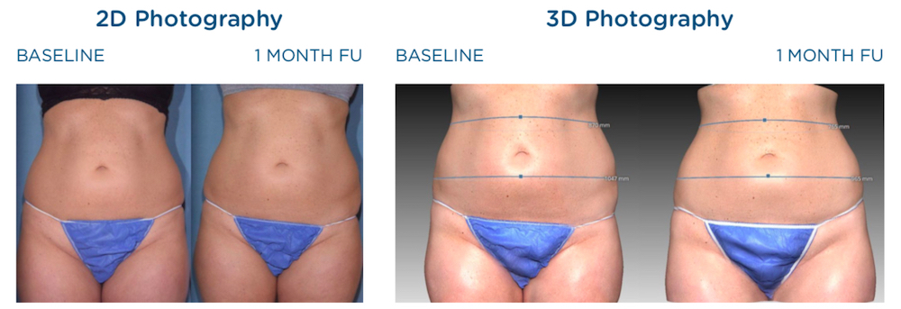 emscupt before and after abdomen images on 2d and 3d photography