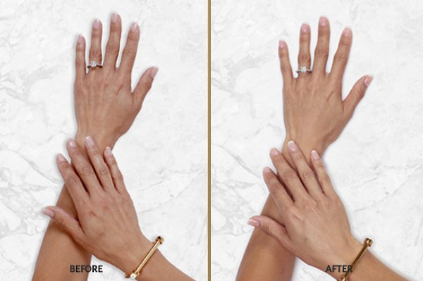 restylane lyft patient hands 1