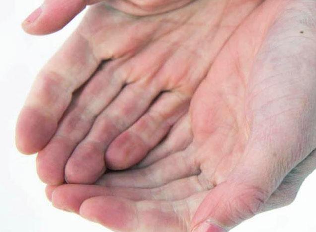 Esclerodermia Conocerla Es Clave Para Erradicarla