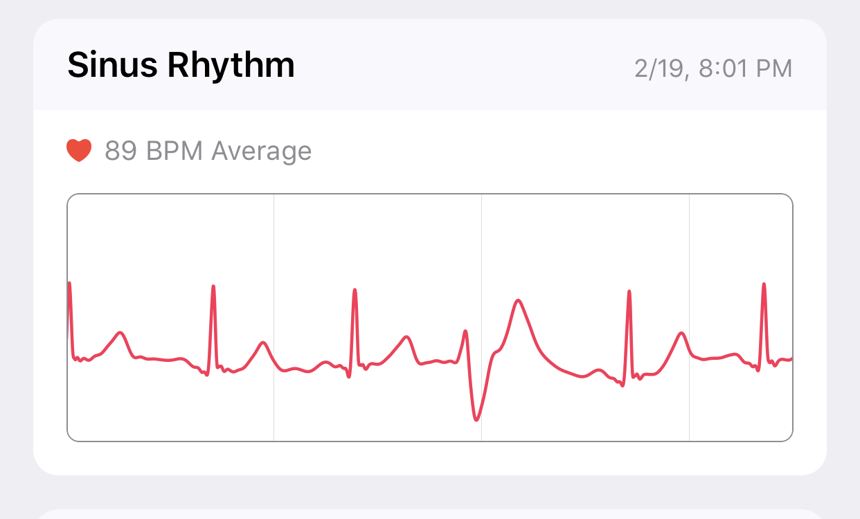 Her ECG from my Apple Watch