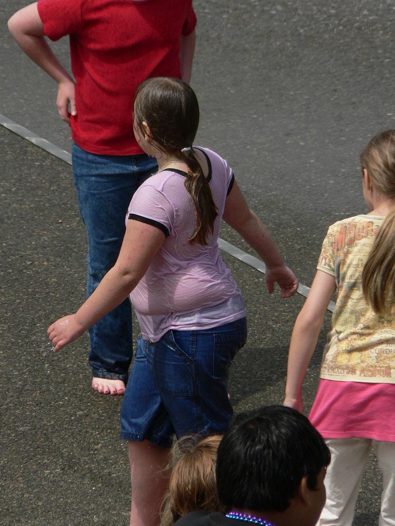 Fuente: https://en.wikipedia.org/wiki/Childhood_obesity#/media/File:Variation_in_body_fat_12577.JPG