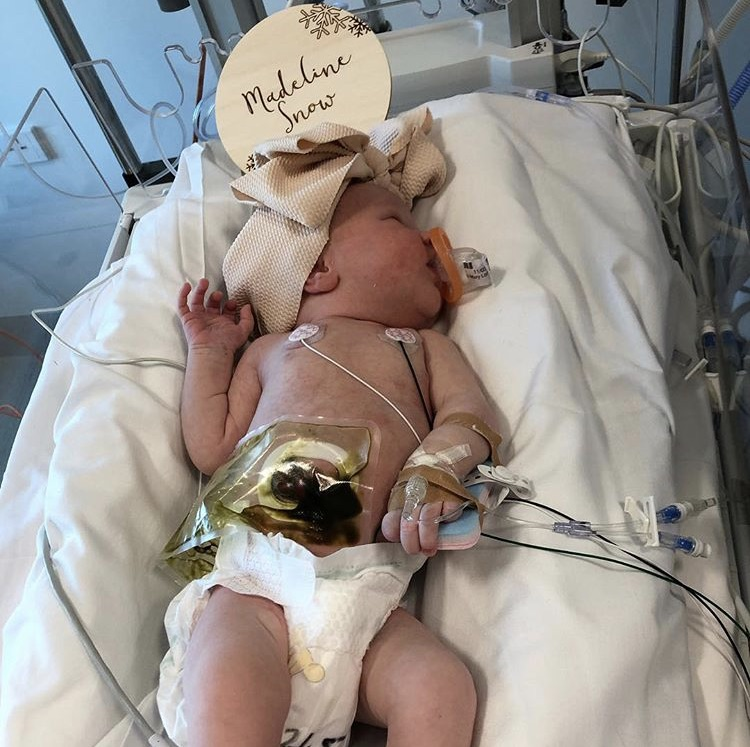 Madeline+Toki+at+6-days-old+suffers+from+cystic+fibrosis.+Picture+credit%3A+Instagram+-+marytoki84