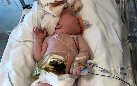 Madeline Toki at 6-days-old suffers from cystic fibrosis. Picture credit: Instagram - marytoki84