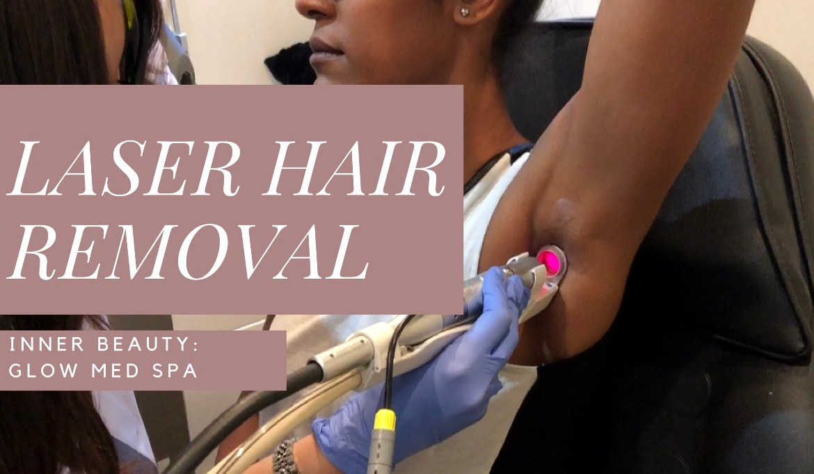 Laser Hair Removal Glow Med Spa