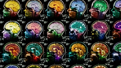 Scientists identify parts of brain involved in dreaming