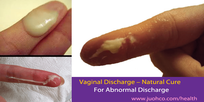 Vaginal Abnormal Discharge and Natural Cure