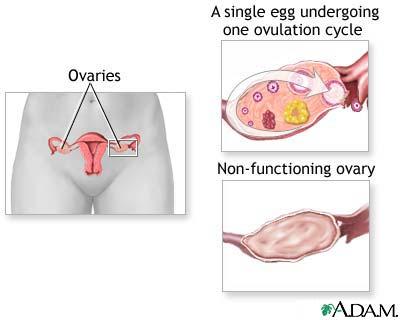 Premature Ovarian Failure 11