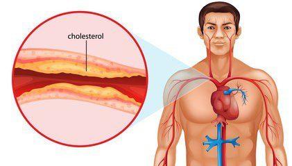 cholestrol regulation 1