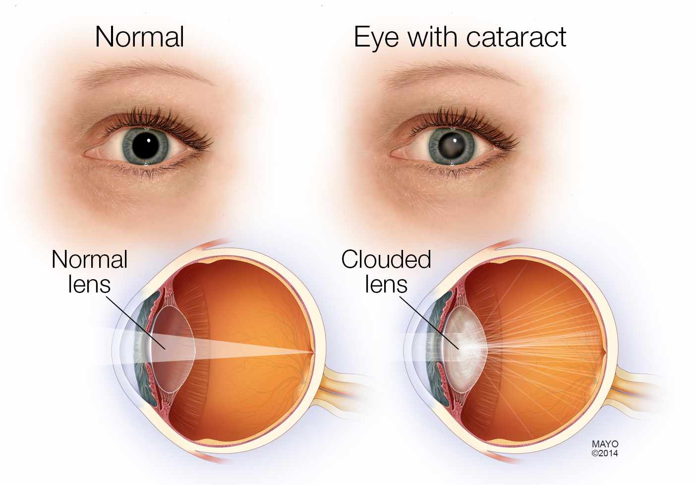 Cataract Symptoms & Natural Treatments That Improved eye Vision