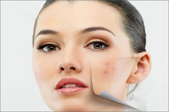 Natural Remedies for Acne and Pimples