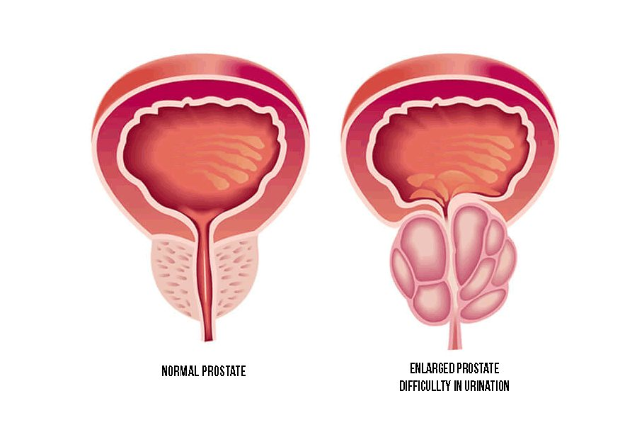 Prostate Health Care combinations it help keep up your strength and rebuild tissues that may be harmed by cancer treatment.