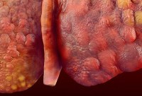 Fatty Liver Disease and Hepatitis B_cirrhosis_liver-1