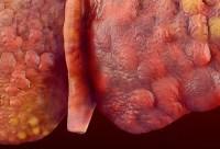 Fatty Liver Disease and Hepatitis B_cirrhosis_liver-1