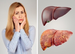 Treatment for Liver Cancer