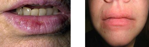 actinic-cheilitis