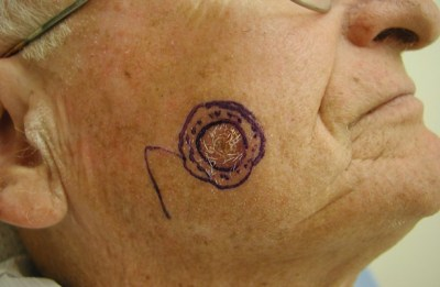 pictures-skin-cancer-before-and-after