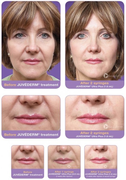 Juvederm-before-after-pictures