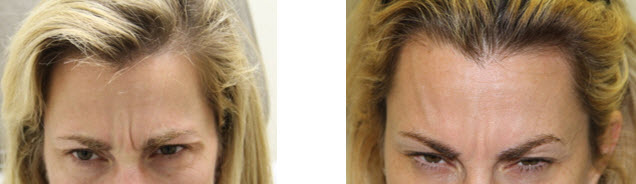 botox-before-after-picture-glabella