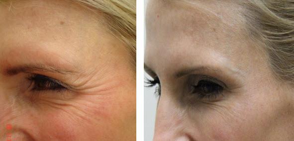dysport-before-after-jupiter-dermatology
