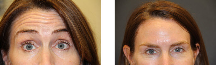 dysport-before-after-pictures-forehead