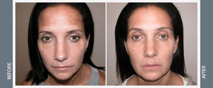 ipl-photo-rejuvenation-beofre-after-pictures-jupiter-dermatology