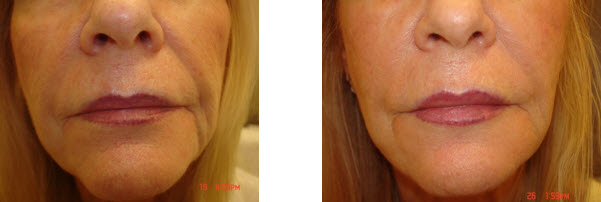 juvederm-before-after-picture-nasal-labial-folds