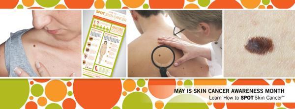 spot-skin-cancer
