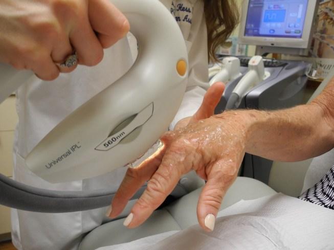 Ipl-treatment